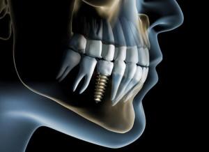 Atliekama implantacija